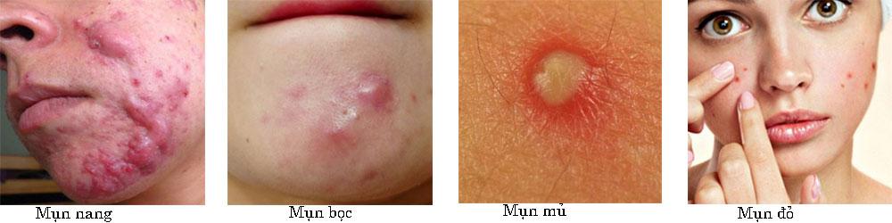 Skin fresh trị mụn có tốt không?