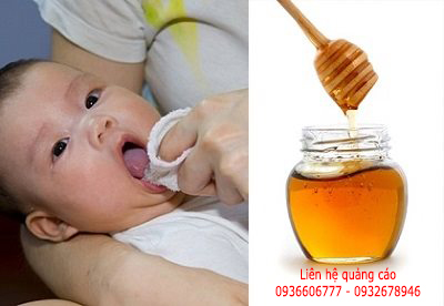 Trẻ co giật vì được đánh tưa lưỡi bằng mật ong